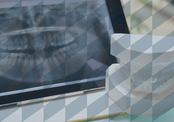 進級・CBT・歯科医師国家試験対策 個別指導 東京デンタルスクール